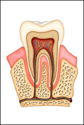 root canal debary
