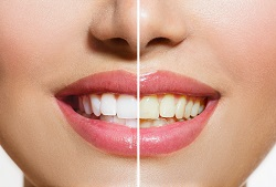 Teeth Whitening Before and After Roseville, CA