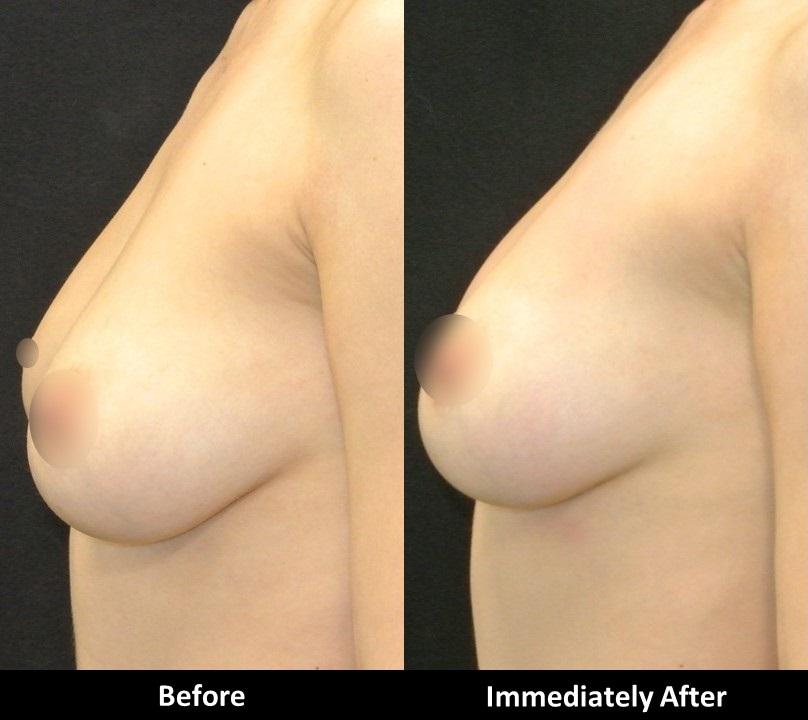 New-Laser-Breast.jpg