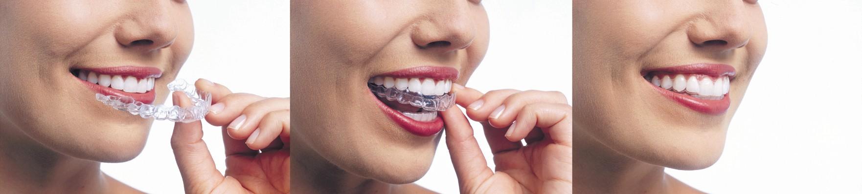 Invisalign Dentist Woodbridge VA