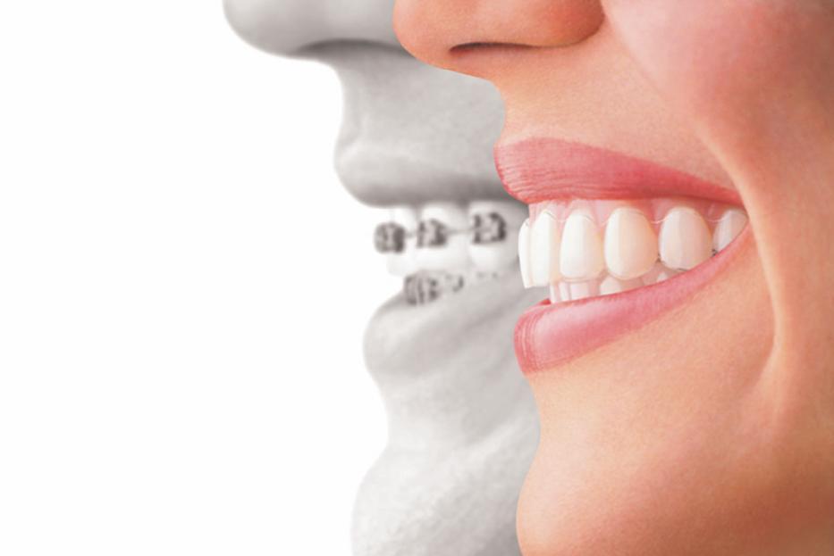 Invisalign Woodbridge VA | Dentist