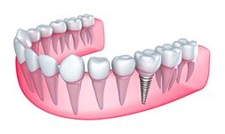 Dental Implants in Trenton, MI